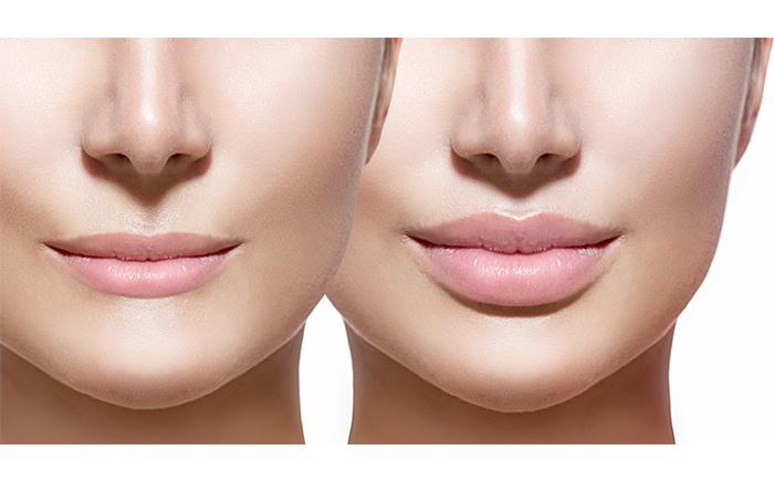 dermal-lip-filler