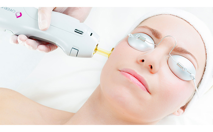 laser treatment for face singapore
